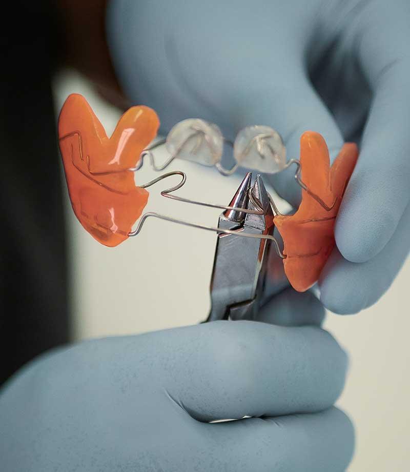 ortodoncia-6-ortopedia maxilar mordida abierta Valladolid