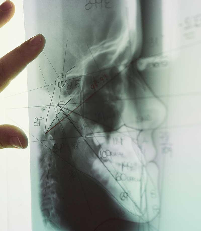 ortodoncia y ortopedia maxilar en Valladolid-11-anomalias labio paladar fisurado leporino